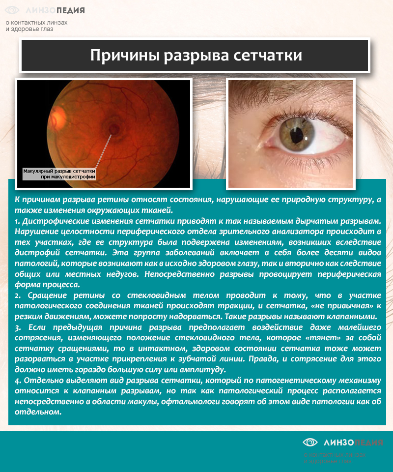 Отслоение сетчатки глаза: причины, симптомы и лечение