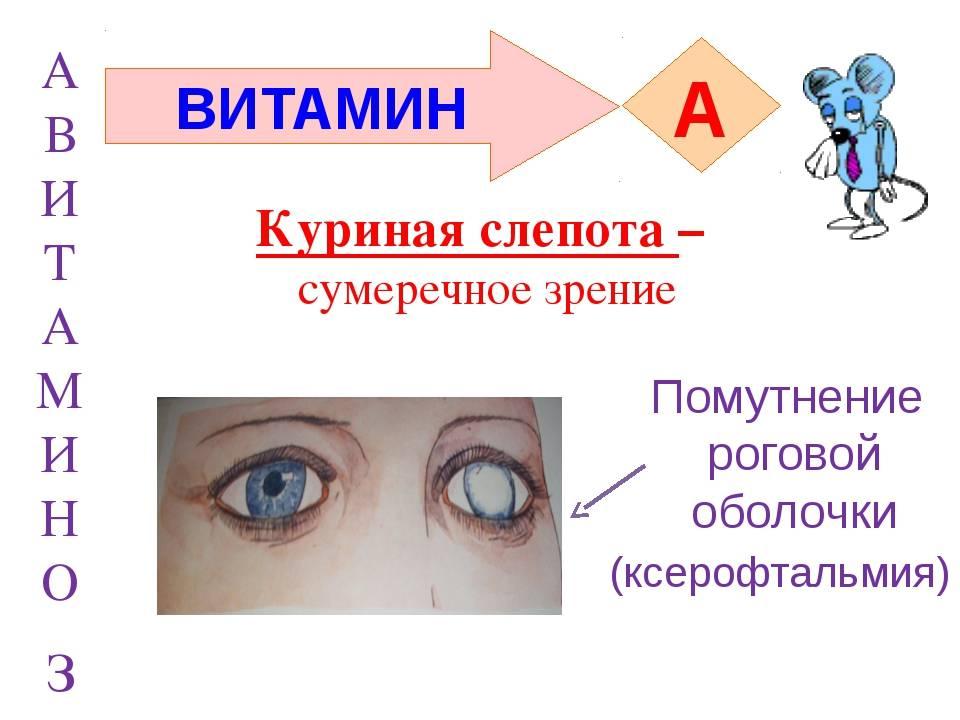 Куриная слепота: болезнь, лечение, недостаток витамина