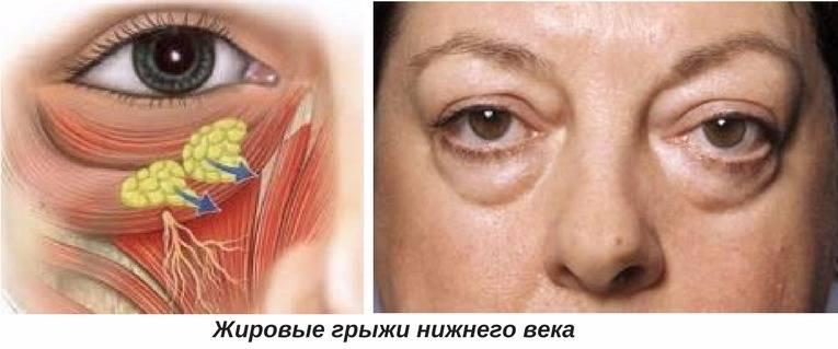 Удаление грыжи века (нижнего, верхнего): трансконъюнктивальное, операция, без операции