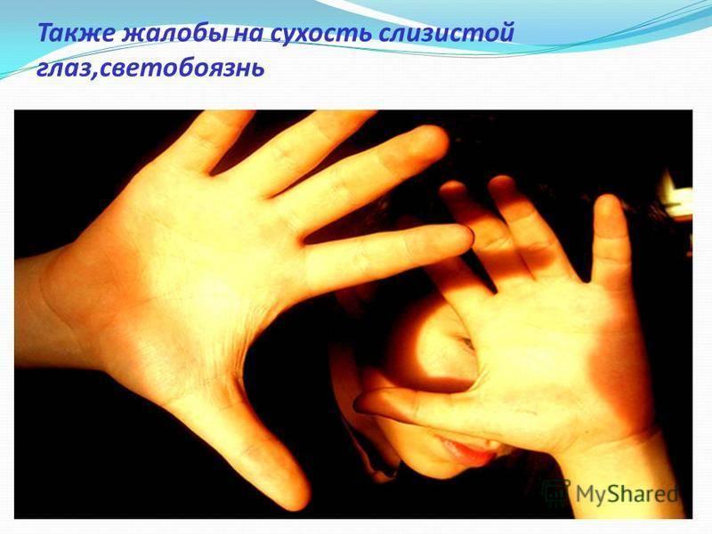 Светобоязнь (фотофобия)