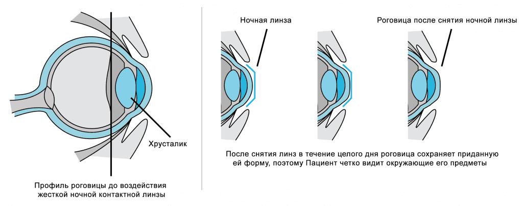 Ортокератология: ночные линзы