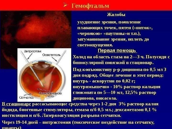 """Гемофтальм глаза: причины, симптомы, лечение - """"здоровое око"""""""
