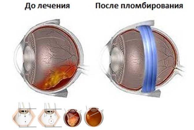 Операции на сетчатке глаза: как проводят при отслойке, разрыве, по укреплению, замена, восстановление после