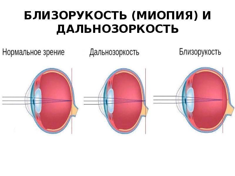 Прогрессирующая близорукость (миопия): как остановить?