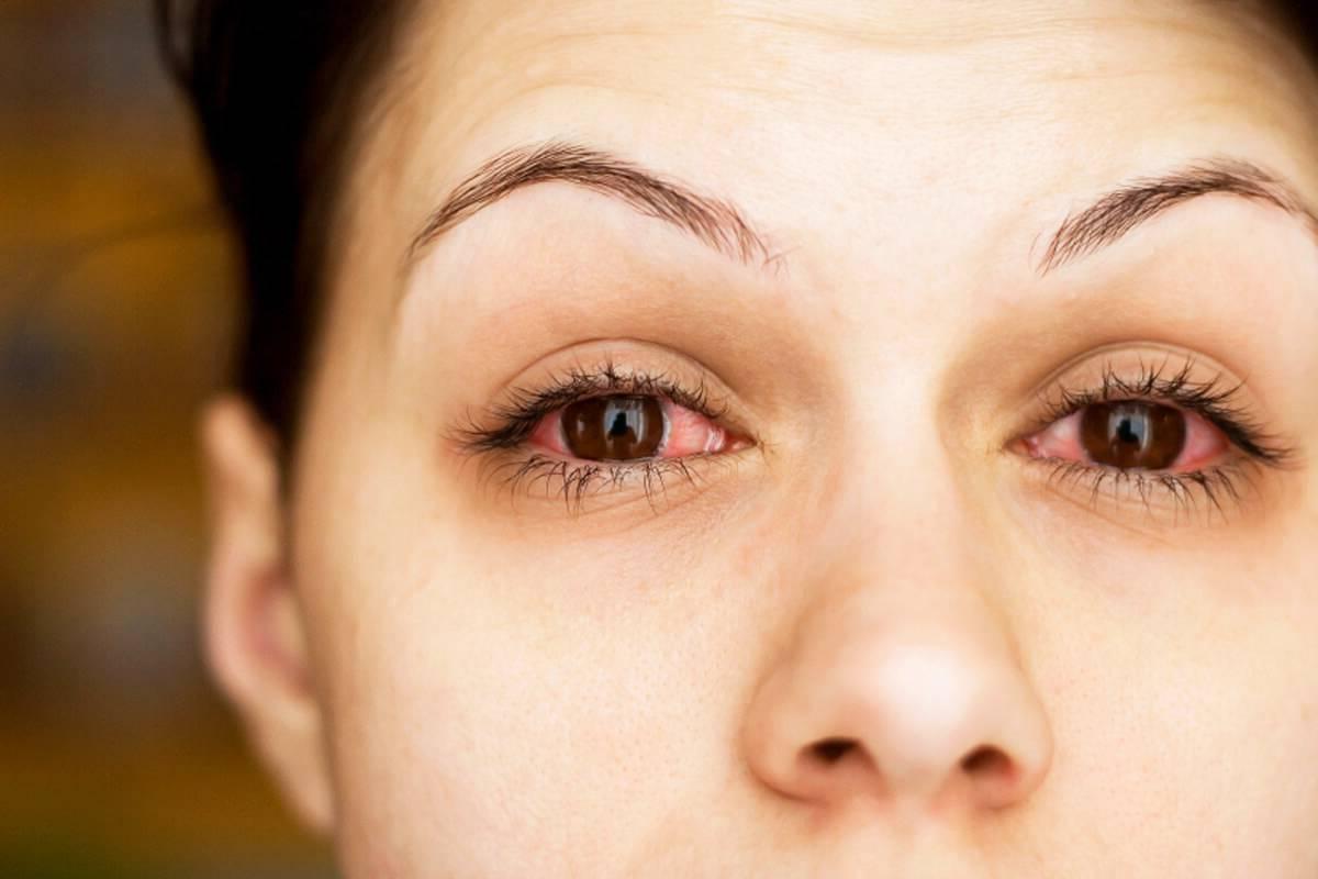 Аллергия на глазах симптомы и лечение — аллергия