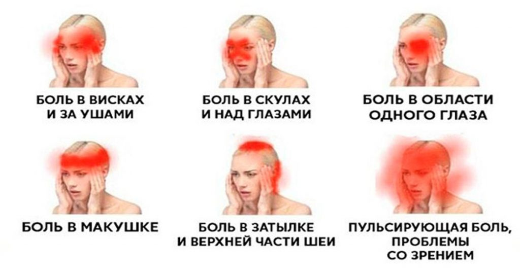 Боли в висках: отчего возникают, характер болей, сопутствующие заболевания и лечение