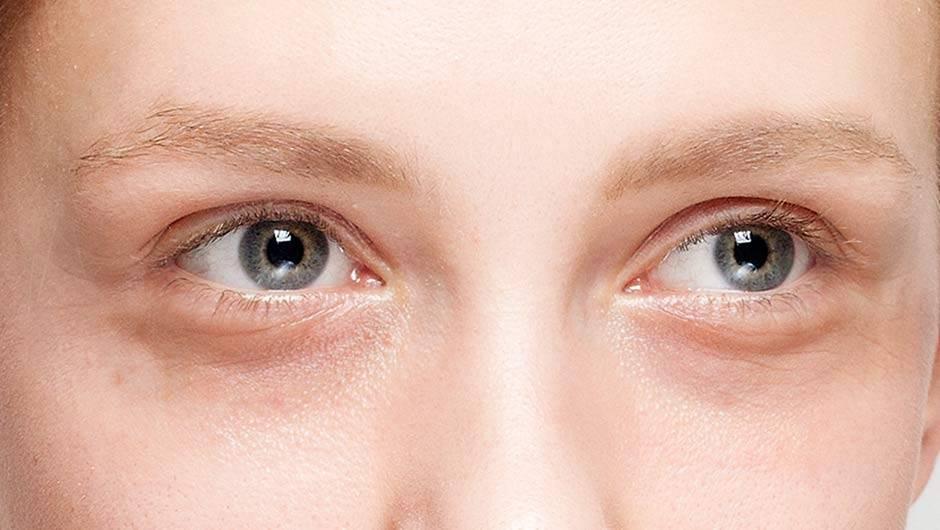 Как убрать синяки под глазами быстро и навсегда