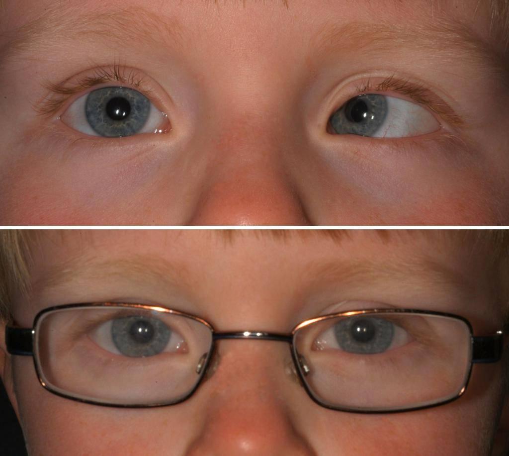 Что такое сложный астигматизм обоих глаз: лечение и коррекция у детей и взрослых