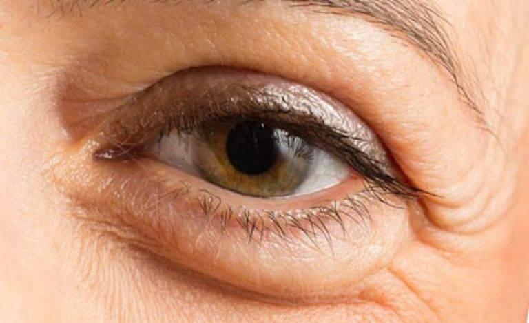 Давит на глаза: причины, что делать при давящей боли