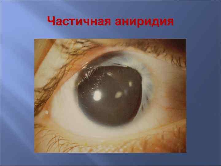 Аниридия: причины, симптомы, лечение
