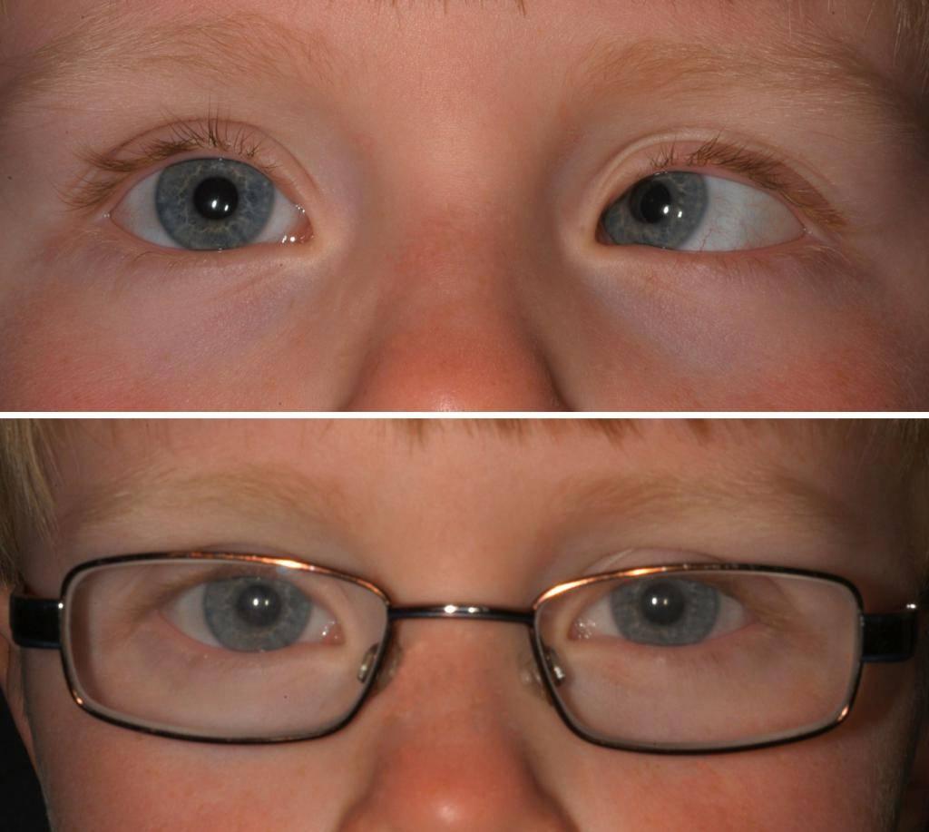 Как скрестить глаза: 13 шагов (с иллюстрациями)