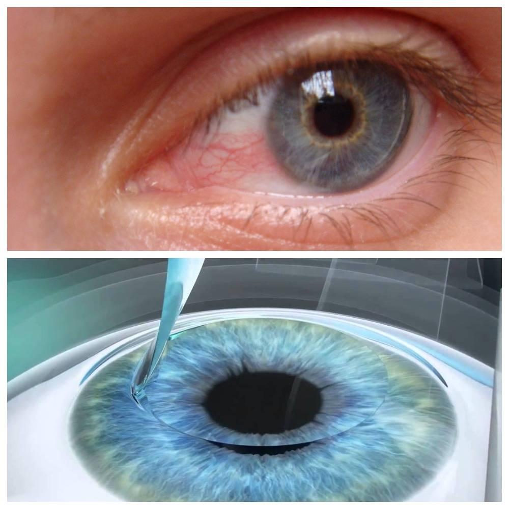 Восстановление после лазерной коррекции зрения - сколько длится реабилитация, рекомендации