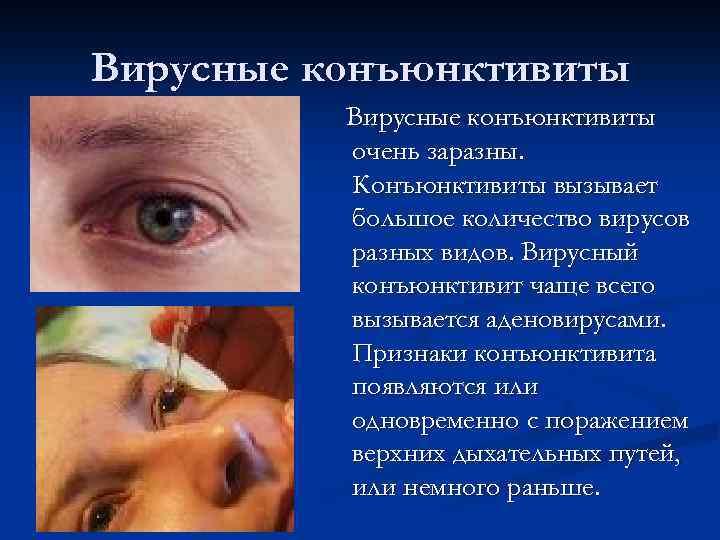 Как передается конъюнктивит: заразно ли заболевание для ребенка и взрослого, пути передачи,
