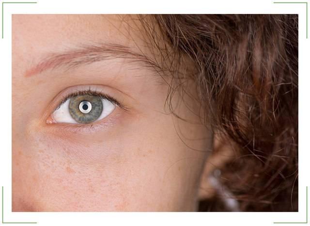 Ночью вспышки в глазах | ocularhelp