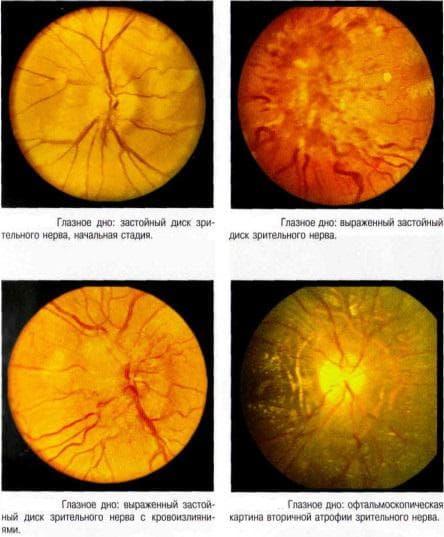 Дзн - застойный диск зрительного нерва в офтальмологии: причины и лечение, симптомы, побледнение и отек