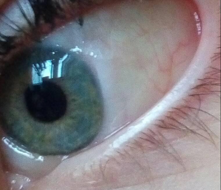 Почему от крема глаза слезятся