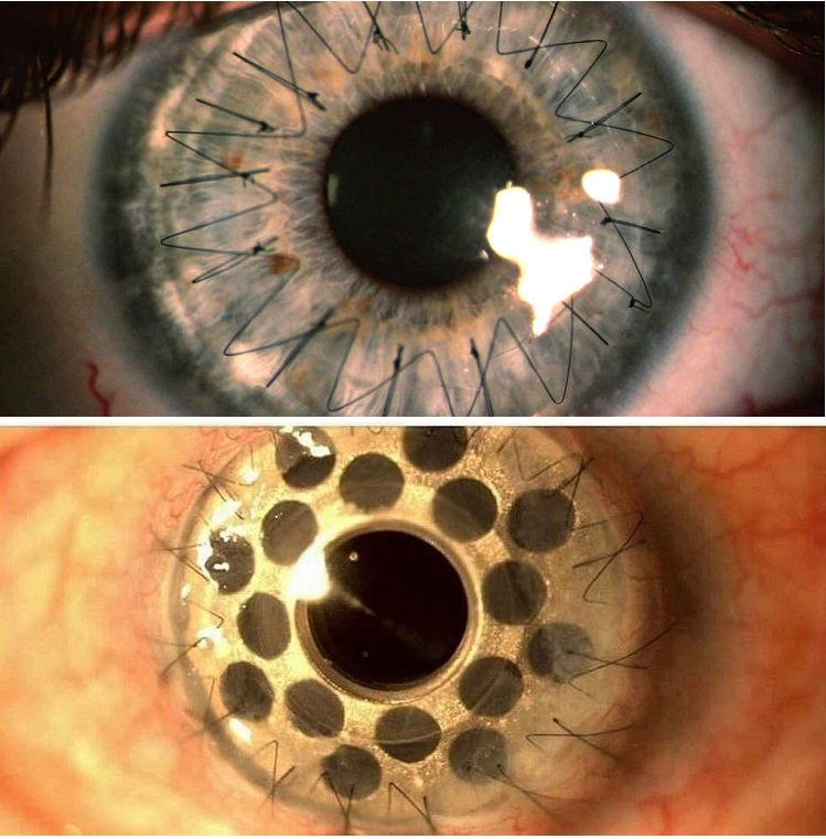 Пересадка роговицы глаза (кератопластика) – операция в цэлт!
