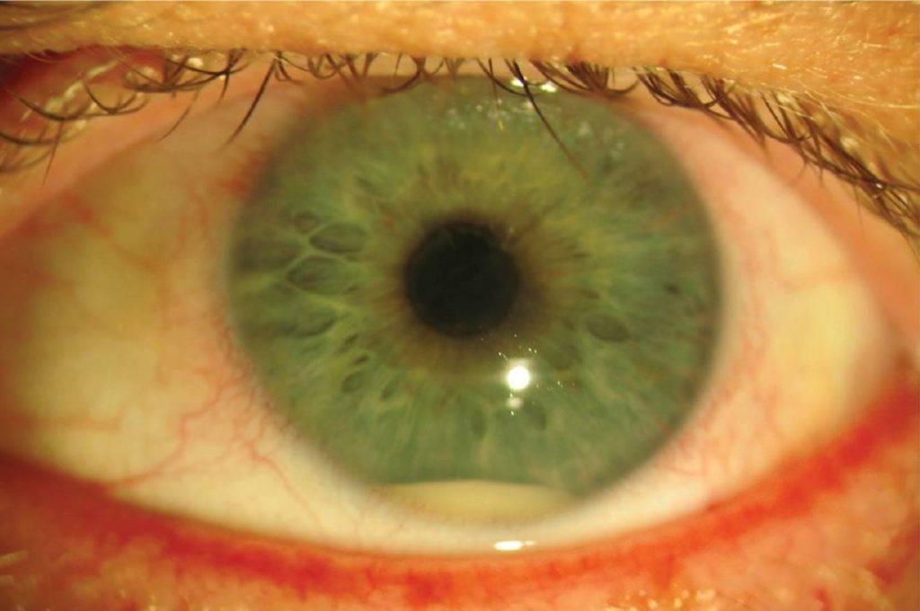 Ирит (болезнь глаз) - симптомы, причины, лечение, последствия