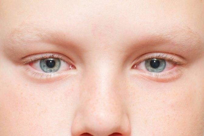 Опасно ли частое сильное моргание глазами у взрослых: причины и эффективное лечение