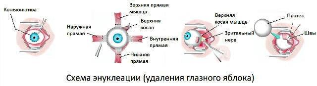Энуклеация глаза (эвисцерация): операция по удалению глазного яблока