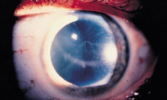 Кератопатия глаза: что это такое, причины, симптомы и способы лечения