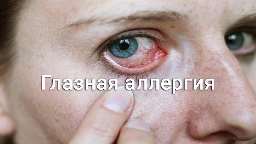 Что делать, если глаз покраснел и болит: 5 эффективных препаратов