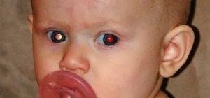 Рак глаза первые симптомы и признаки болезни