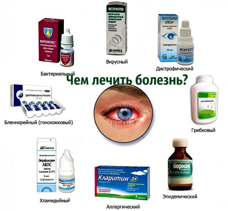 Конъюнктивит. аллергический, бактериальный и вирусный конъюнктивит. причины, симптомы, диагностика и лечение болезни.