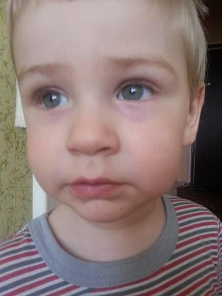 Почему у ребенка красные синяки под глазами: комаровский о причинах