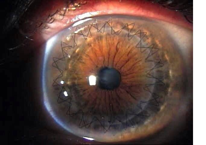 Пересадка роговицы глаза - особенности проведения кератопластики