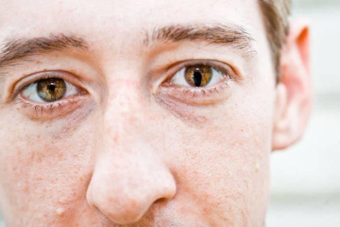 Что означают расширенные зрачки: причины и возможные заболевания