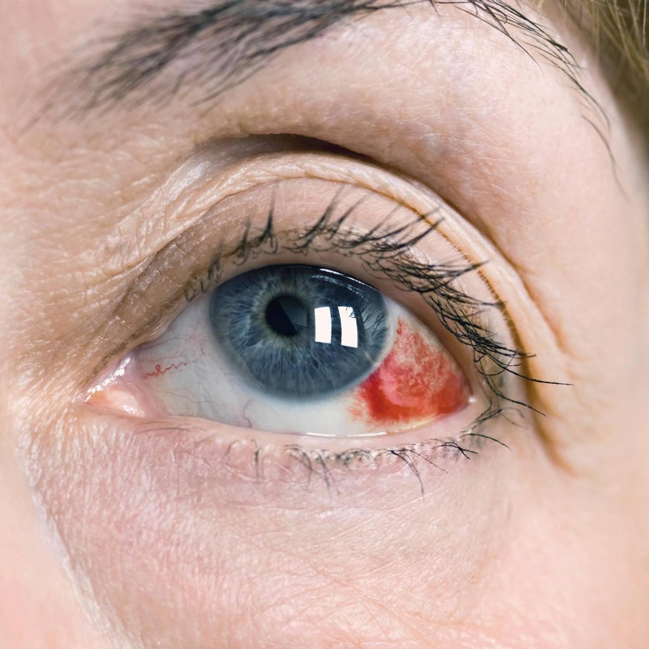 Гемофтальм глаза: это серьезное заболевание или нет, почему происходит кровоизлияние в стекловидное тело, что такое частичное и тотальное поражение правого или левого глаза