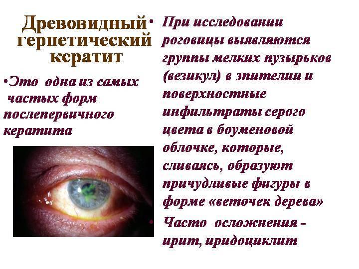 Герпетический кератит   компетентно о здоровье на ilive