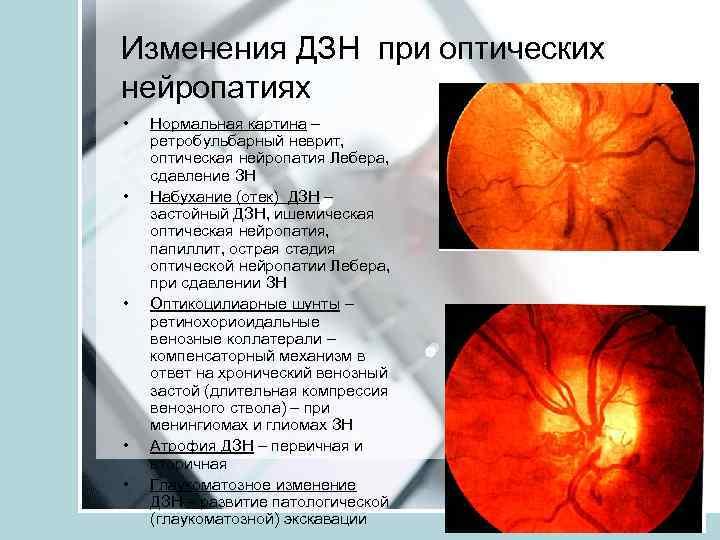 Ишемическая нейропатия зрительного нерва (передняя и задняя): причины и лечение. ишемическая нейропатия зрительного нерва - поджелудочная