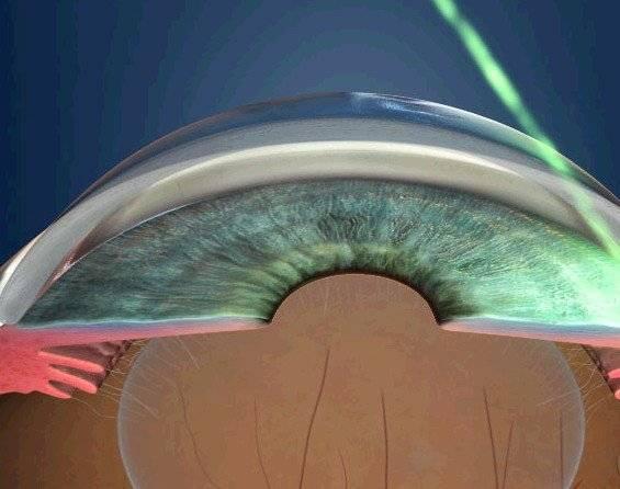 Лечение глаукомы в москве современными методами - препараы (капли), лазерные операции и хирургия