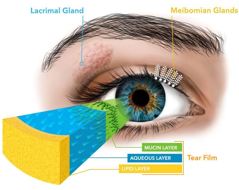 Синдром сухого глаза: причины, симптомы, лечение