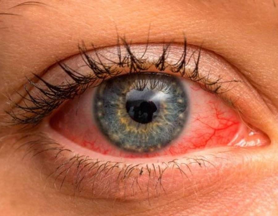 Симптомы ирита, иридоциклита, причины, лечение воспаления радужной оболочки глаза