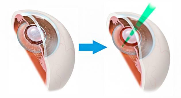 Особенности послеоперационного периода после замены хрусталика глаза при катаракте