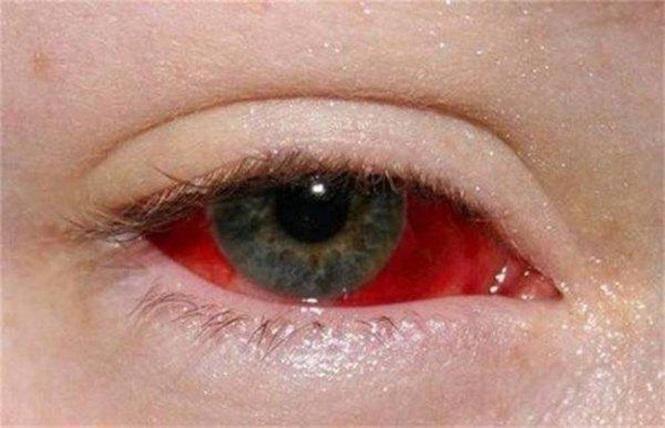 Немедленная помощь сохранит зрение! если появилась кровь в глазу после удара: что делать?