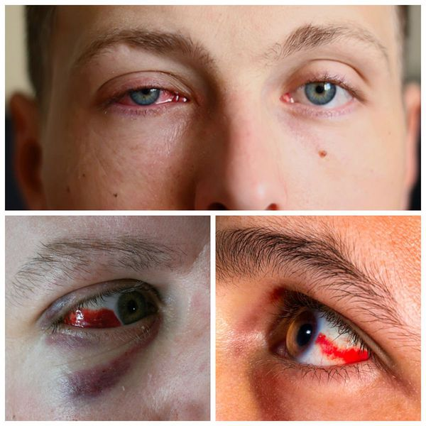 Что делать при ушибе глаза, первая помощь и лечение