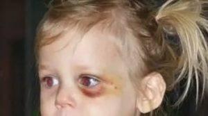 Методы быстрого избавления гематомы глаза после удара: лечение медикаментами и народными средствами