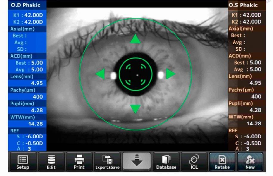 Как проходит и для чего нужна процедура пахиметрия глаза — исследование толщины роговицы? пахиметрия глаза где проводится пахиметрия и ее стоимость