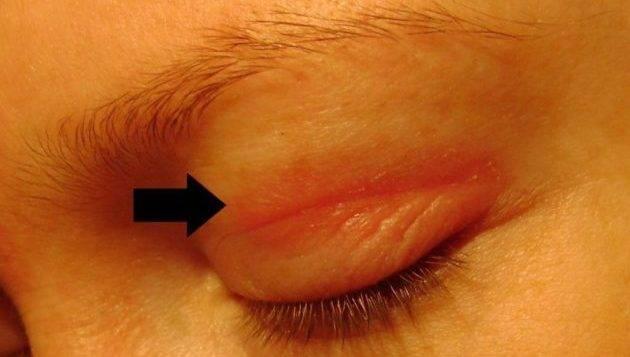 Как лечить аллергию на глазах: причины, симптомы, лучшие лекарственные препараты и народные средства, эффективные способы и рекомендации