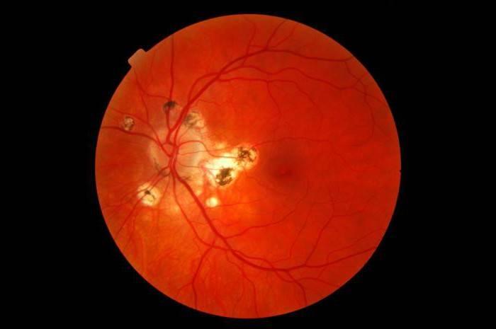 Амавроз глаза: причины развития, чем опасно, лечение