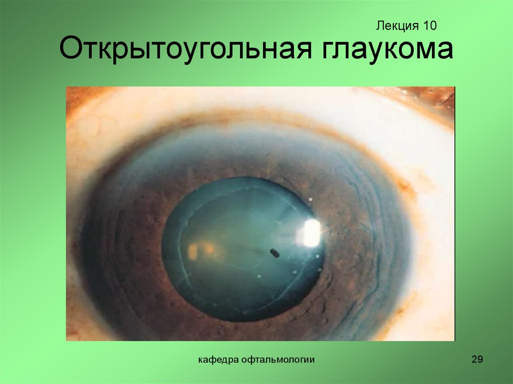 Закрытоугольная глаукома - что это, причины, симптомы и лечение
