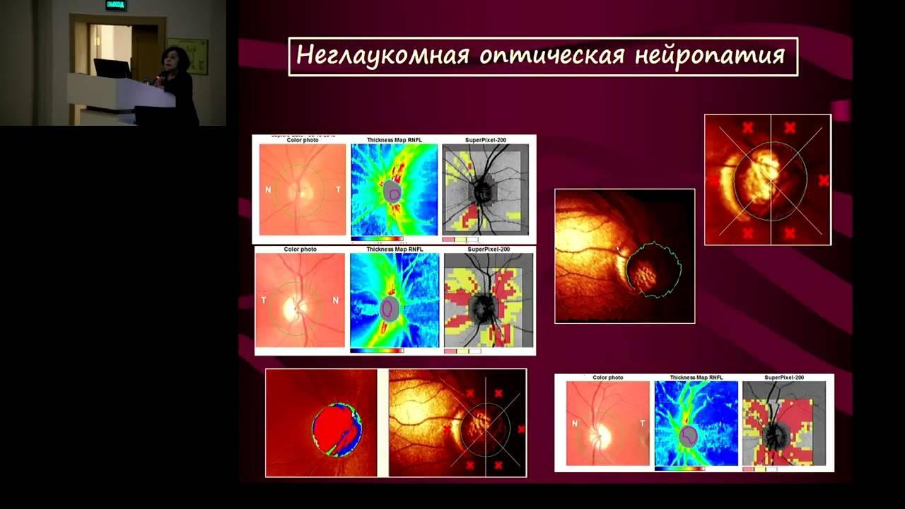 Подготовка к осмотру у нейроофтальмолога