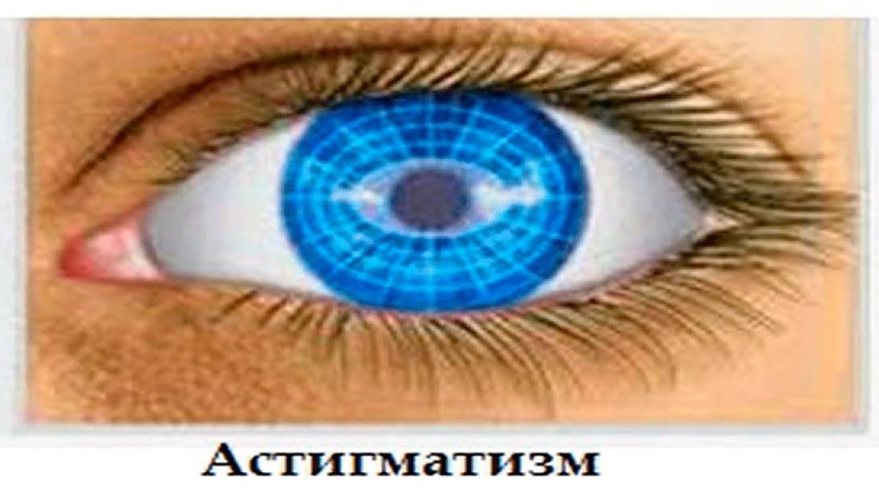 Лечение астигматизма в домашних условиях: травы и полезное питание