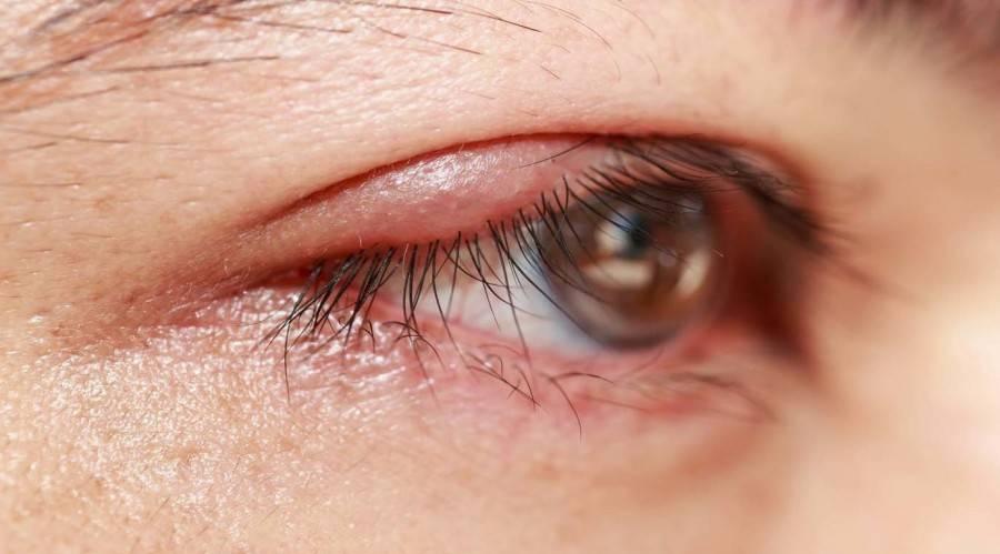 Киста конъюнктивы на глазу: причины, лечение слезной железы и роговицы глазного яблока