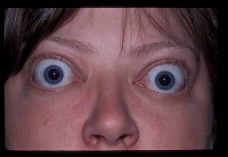 Пучеглазие - болезнь выпученных глаз, когда на выкате, почему люди пучеглазые, выпучены и вылезли, большие, причины