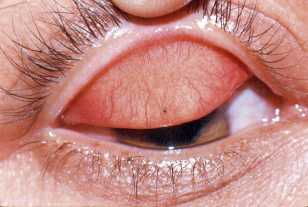 Травма глаза: виды, первая помощь и методы лечения